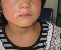 武汉小孩子有白斑用什么方法