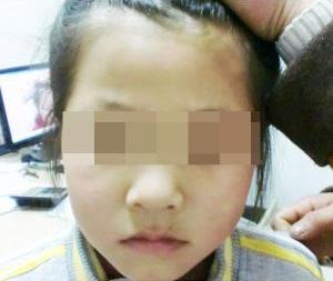 武汉脸上的白斑会是白癜风造成的吗