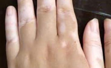 如何预防手部患上白癜风