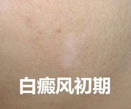 武汉治疗白癜风哪个医院好?如何控制白癜风的发作和扩散?