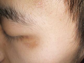 武汉哪家医院可以治白斑?白癜风一开始什么症状呢?